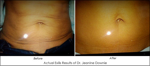 exilis-Downie-B-A-Stomach[1]