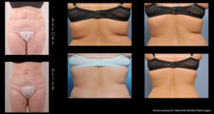 exilis_before&after[1]